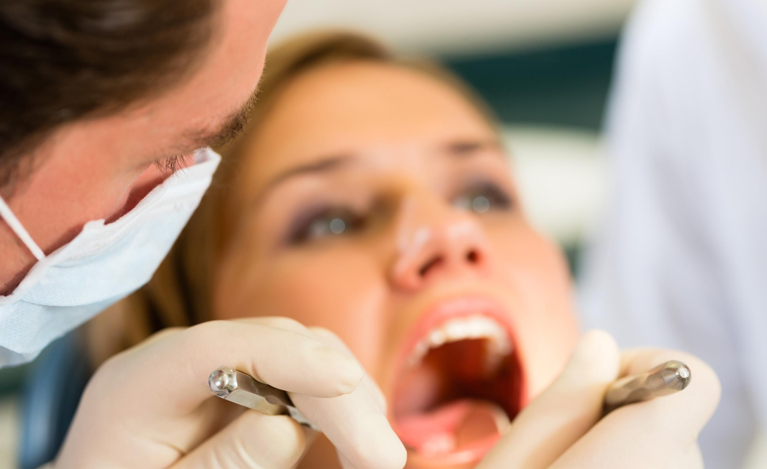 Fogkőeltávolítás kellemetlen szájszag ellen