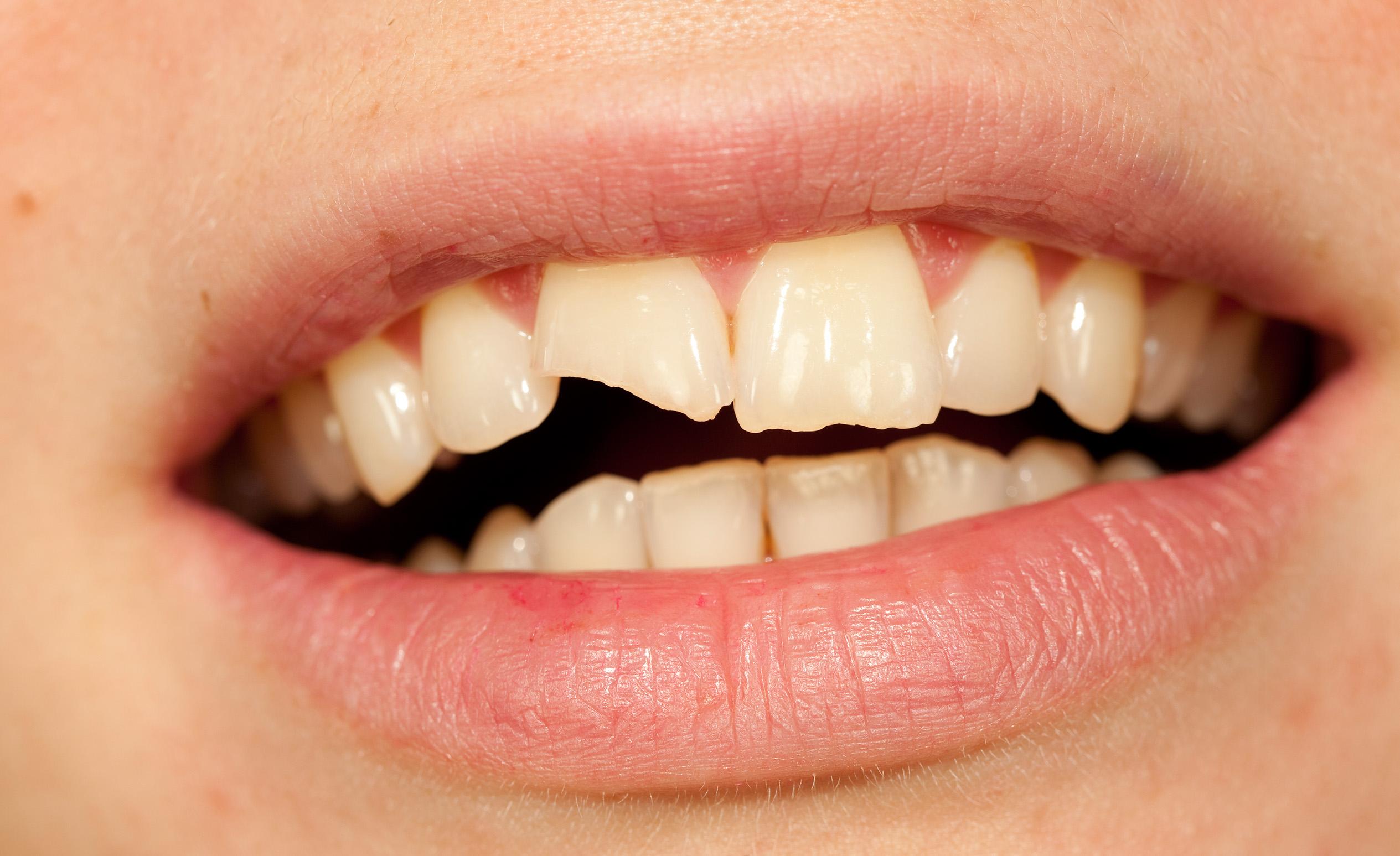 Frauenlächeln vor und nach der Zahnaufhellung.