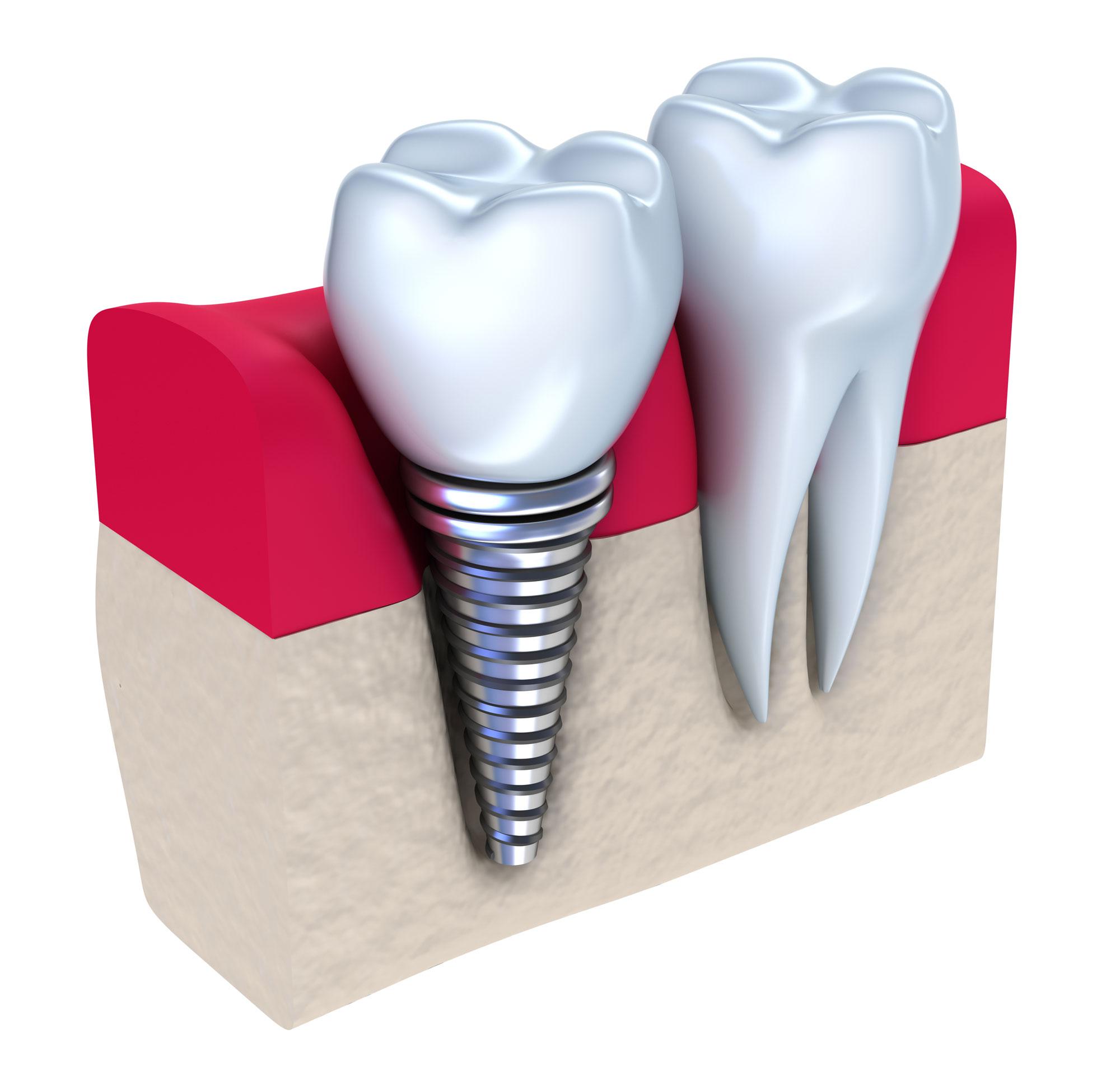 Implantierter Zahnersatz im Falle des Mangels einzelner Zähne.