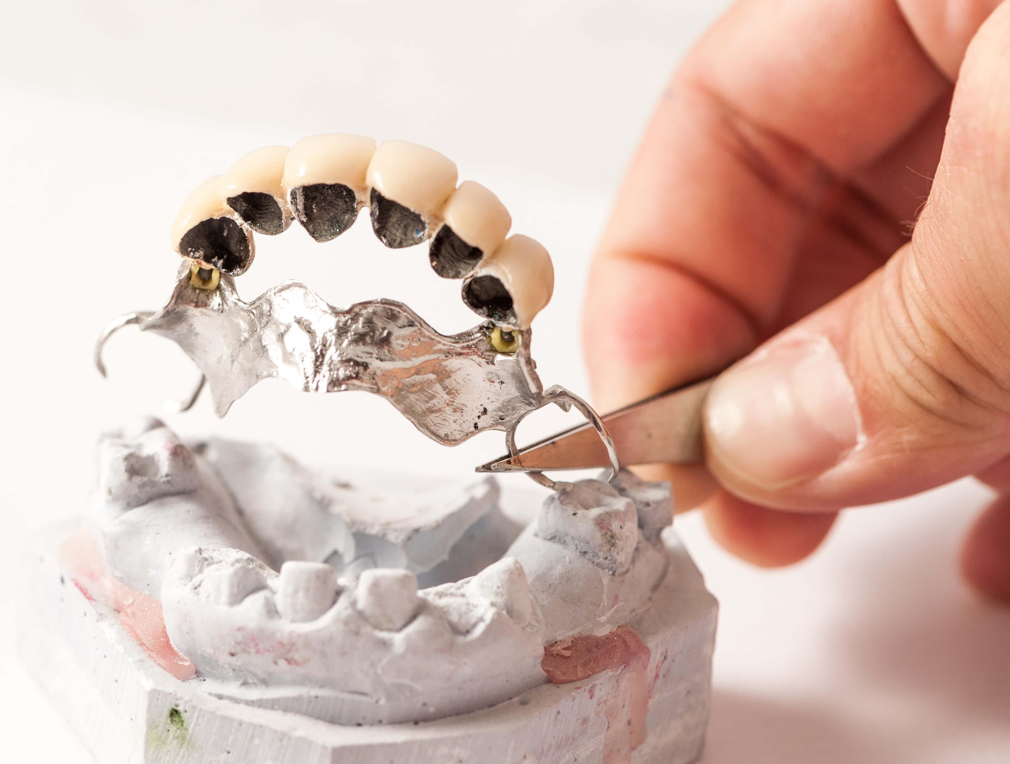 Traditionelle Teilprothese, Zahnimplantat