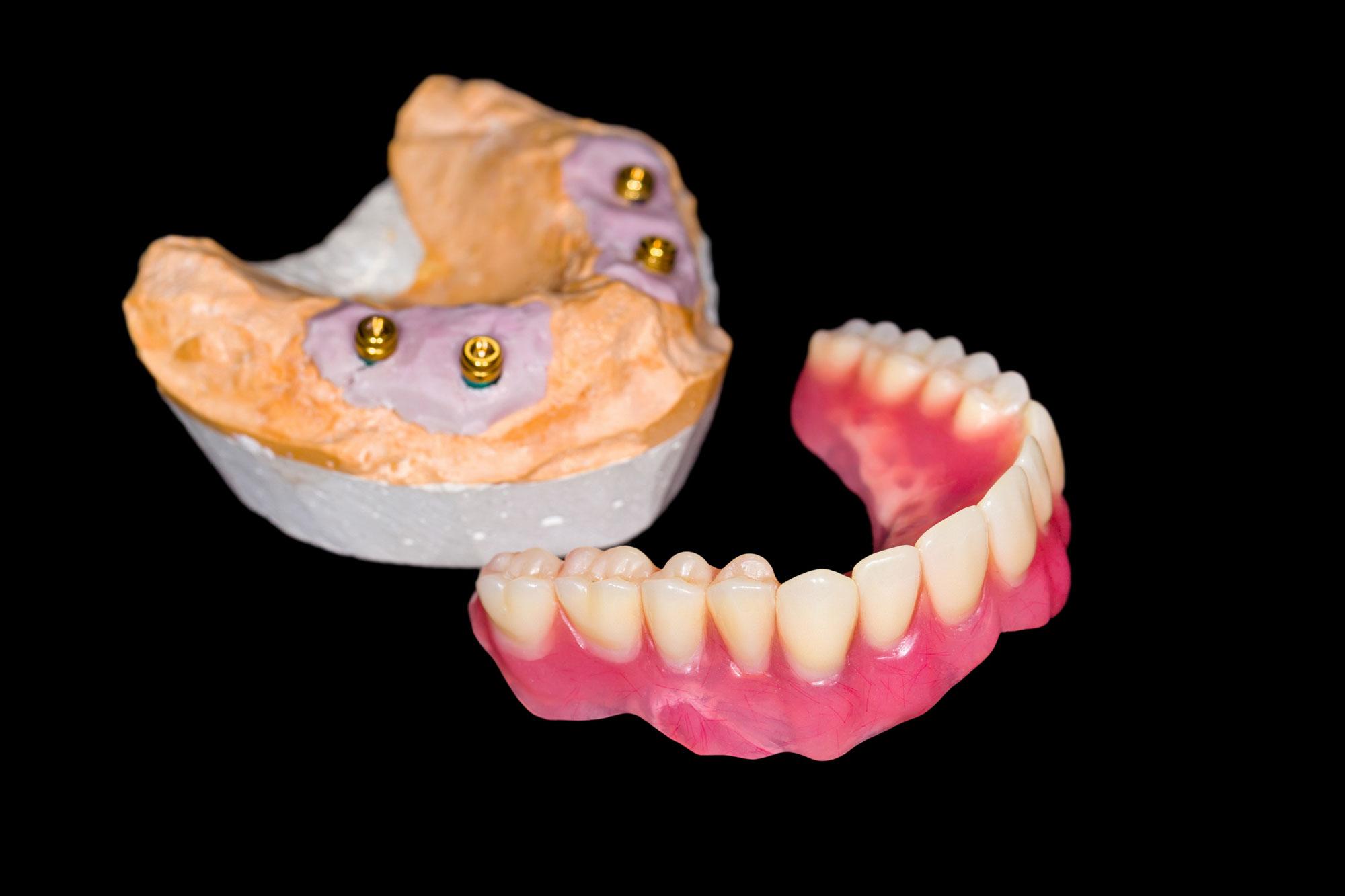 Herausnehmbare Zahnreihe mit Implantation im Falle totaler Zahnlosigkeit.