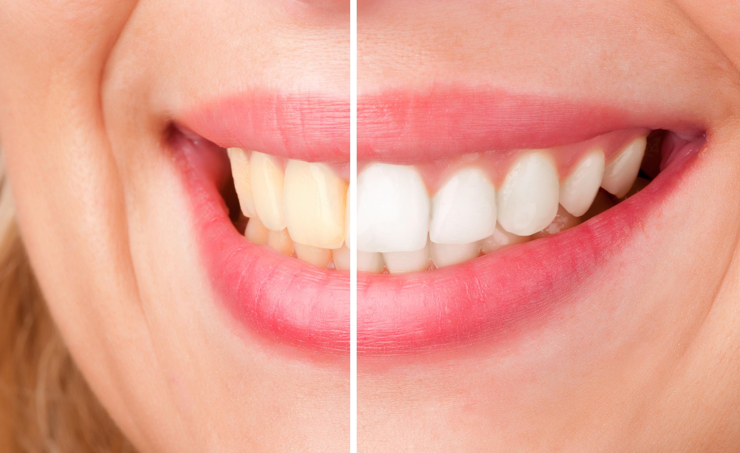 Női mosoly fogfehérítés előtt és után.