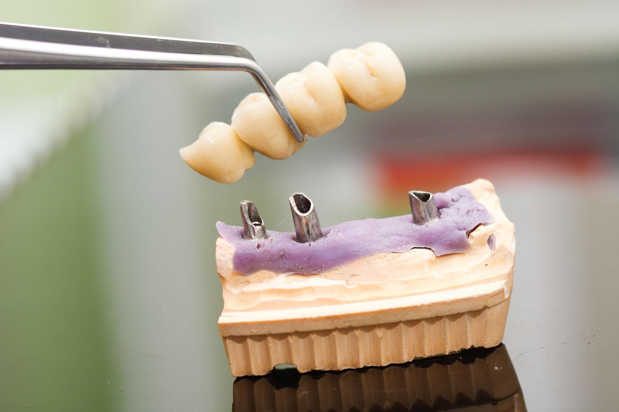 Implantierter Zahnersatz bei Zahnmangel an der Ende der Reihe.